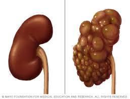Λοιμώξεις Ουροποιητικού στην Πολυκυστική Νόσο των Νεφρών