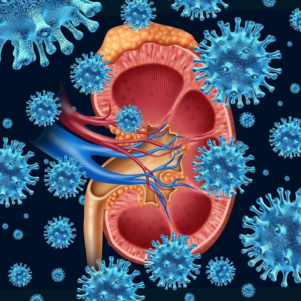 Πυελονεφρίτιδα