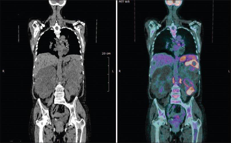 PET - CT SCAN Ποζιτρονική Τομογραφία