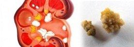 Πως δημιουργούνται οι πέτρες στα νεφρά