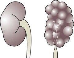 Συγγενής Μονόνεφρος ή Συγγενής Μονήρης Νεφρός